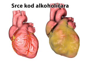 alkoholizam srce problem