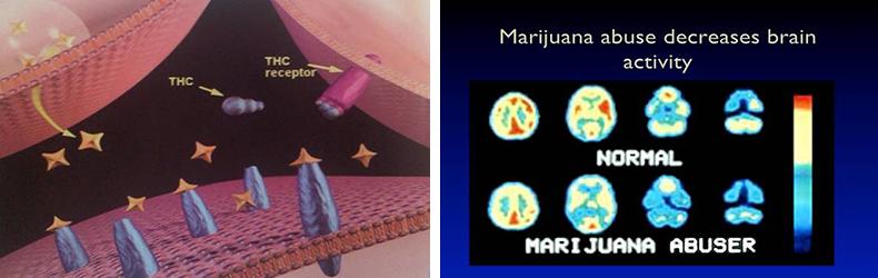 Psychological consequences of marijuana use - Dr. Vorobjev