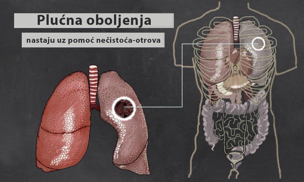 bolesti pluca narkomanija