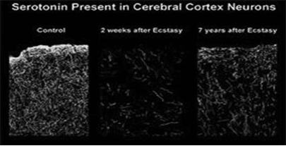Depresija od kokaina - Dr Vorobjev
