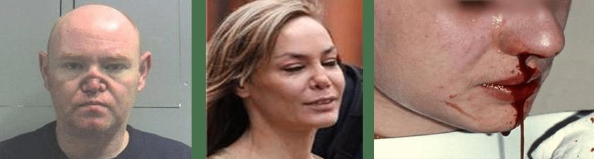 Oštećenje čula mirisa - Dr Vorobjev