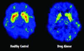 Oštećenje psihičkih funkcija - Dr Vorobjev