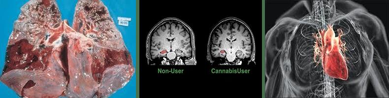 Posledice korišćenja marihuane - Dr Vorobjev