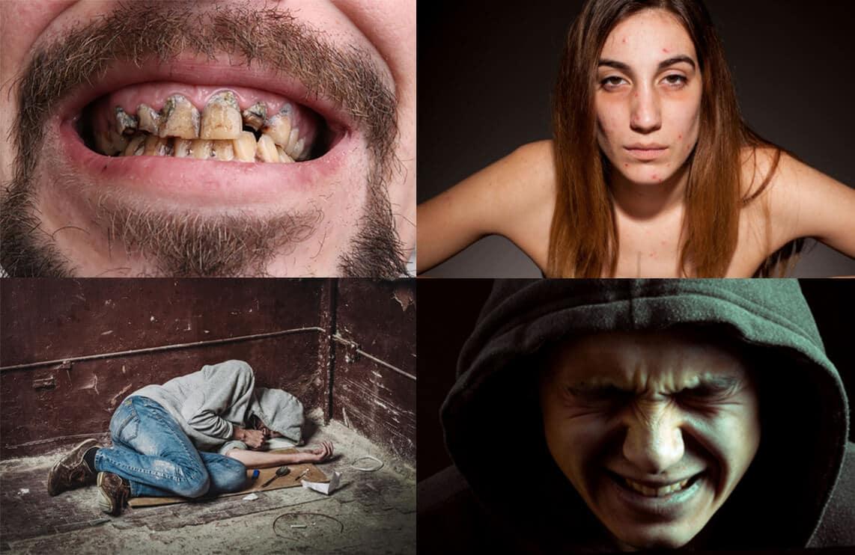 zavisnik od heroina